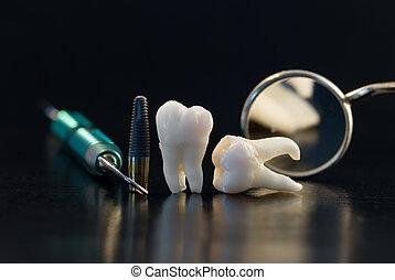 טיטניום, של השיניים, השרש